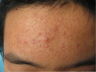 如何预防红肿型青春痘