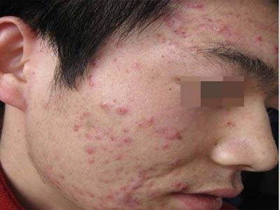 青少年正确预防痤疮的方法是什么