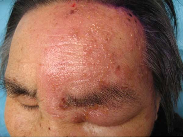 带状疱疹有什么症状表现