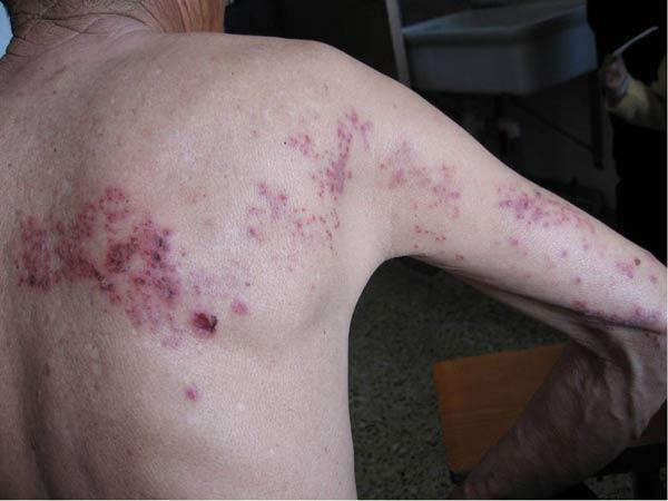 带状疱疹该怎么预防