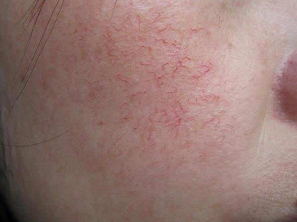 面部红血丝病因是什么