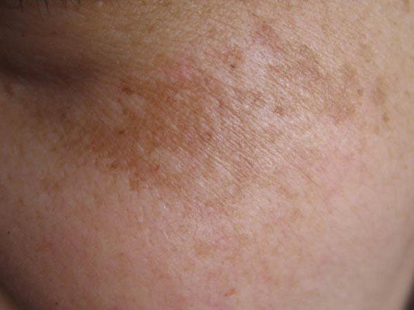 面部黄褐斑患者的护理措施该怎么做
