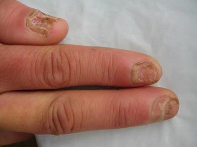 灰指甲发病怎么正确诊治