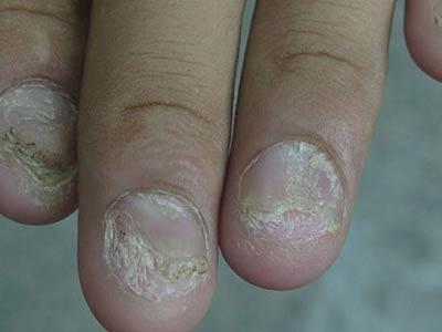 灰指甲的初期症状什么样