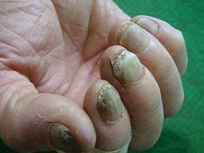 灰指甲的危害