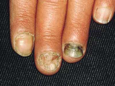 灰指甲怎么治