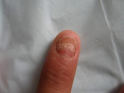 预防灰指甲发病需做好什么事项