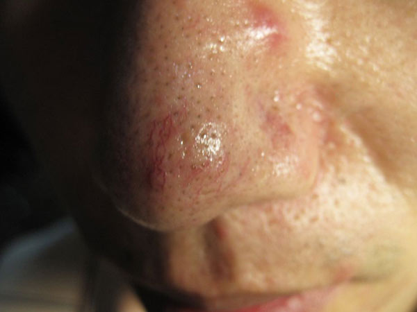 如何预防酒糟鼻复发