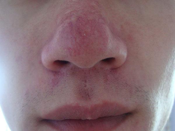 预防酒糟鼻需做好哪些事项