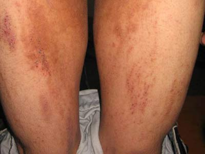 如何治疗皮肤瘙痒疾病