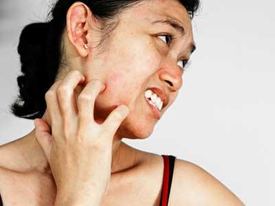 皮肤瘙痒难受能抓挠吗