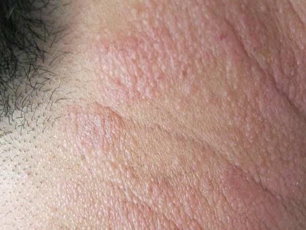 不同皮炎的症状是什么