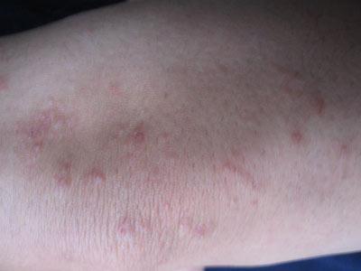 慢性皮炎该怎么治