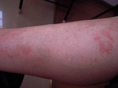 导致过敏性皮炎的病因有哪些