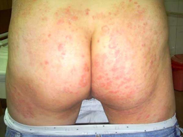 预防神经性皮炎发作有哪些方法