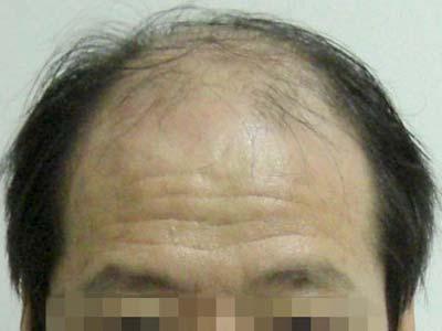油腻性脱发的症状有什么