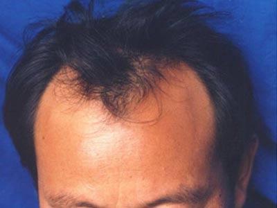 脱发在日常的生活上要怎么样护理