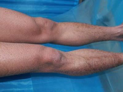 都有哪些原因会导致鱼鳞病呢